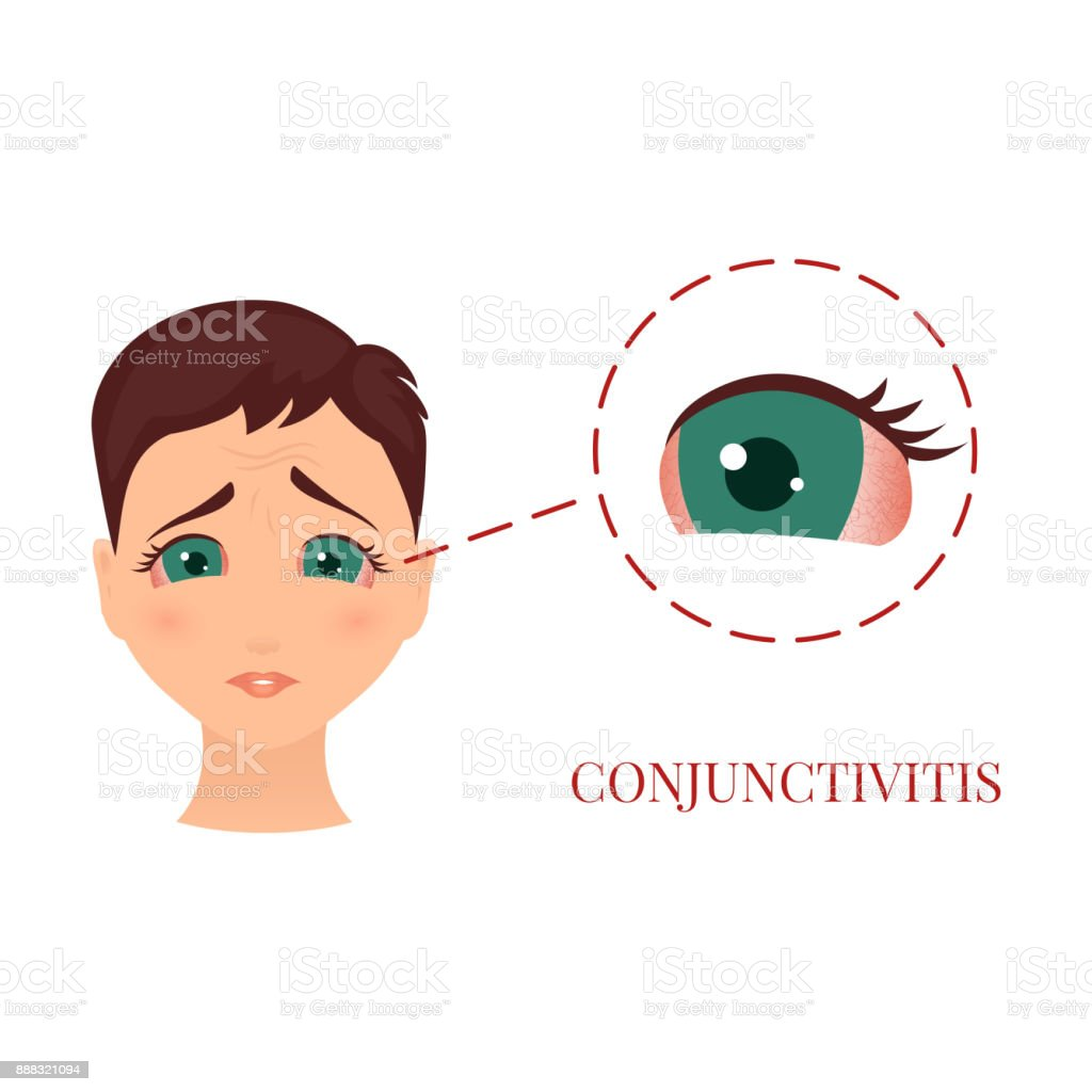 Woman with conjunctivitis vector art illustration