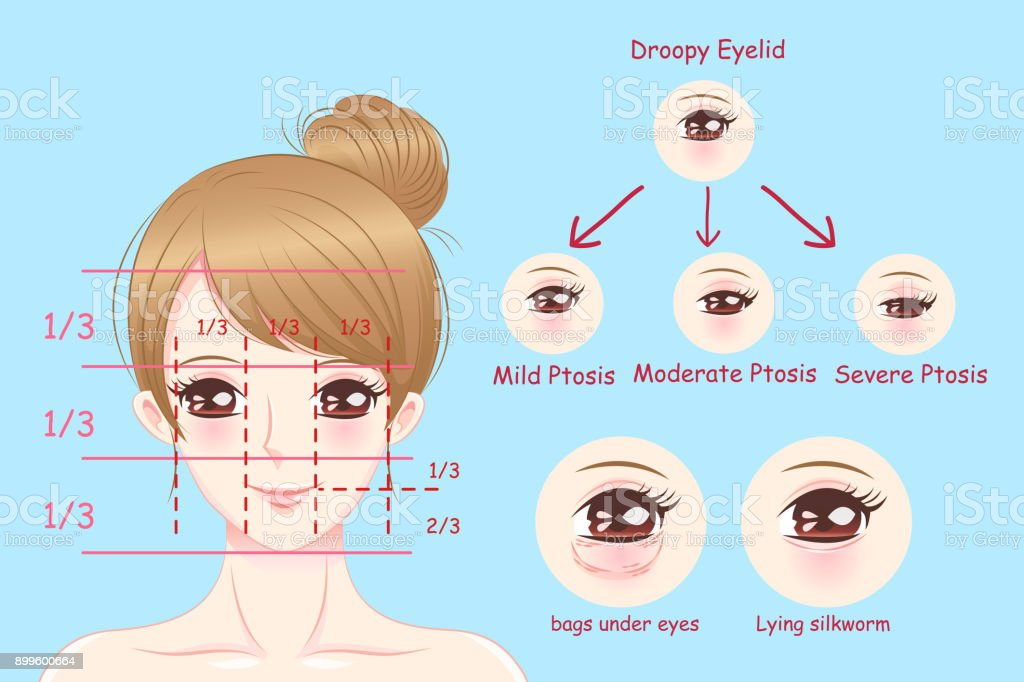 woman with droopy eyelids vector art illustration