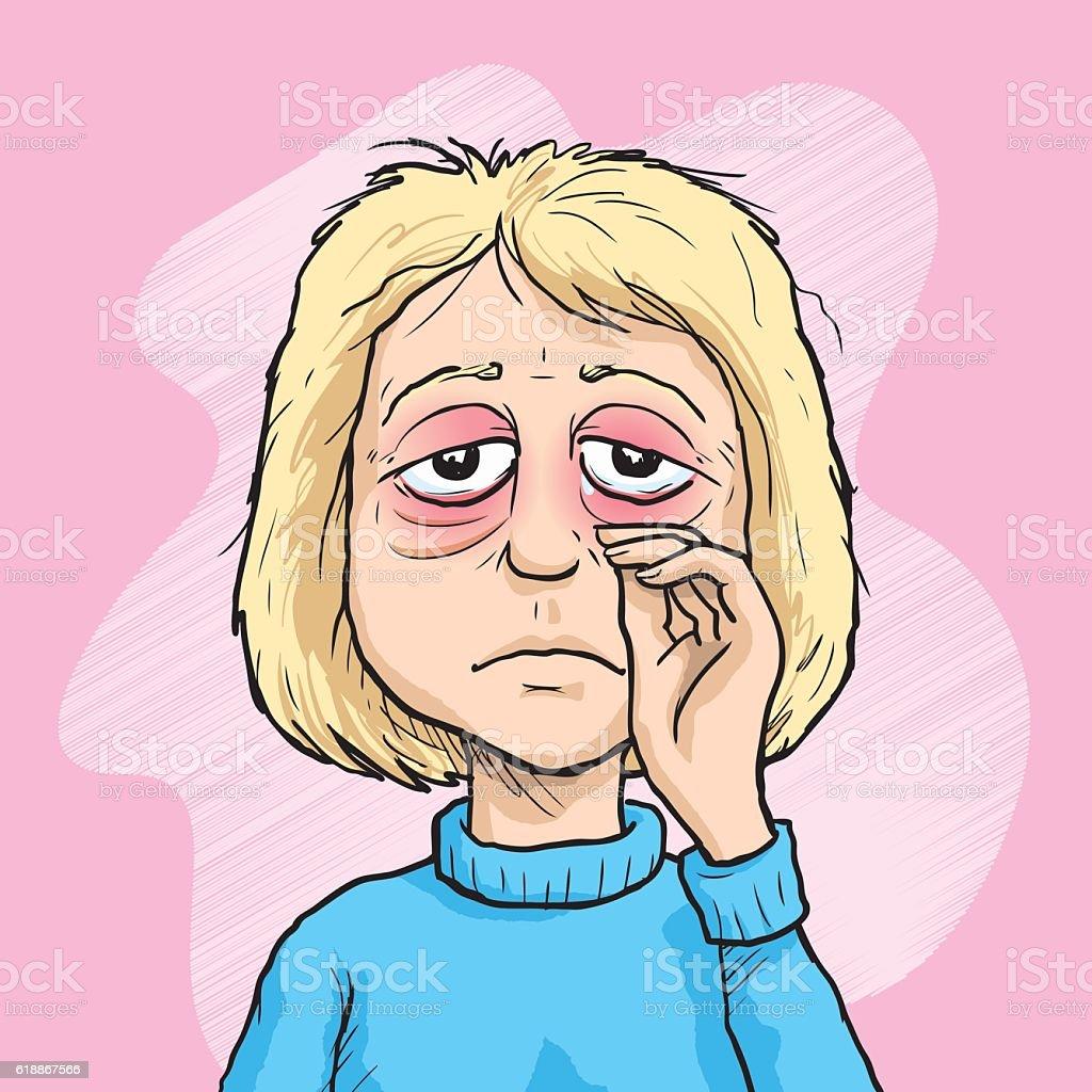 woman with sore eyes stock vector art 618867566 istock springtime clipart with braces springtime clipart for instagram