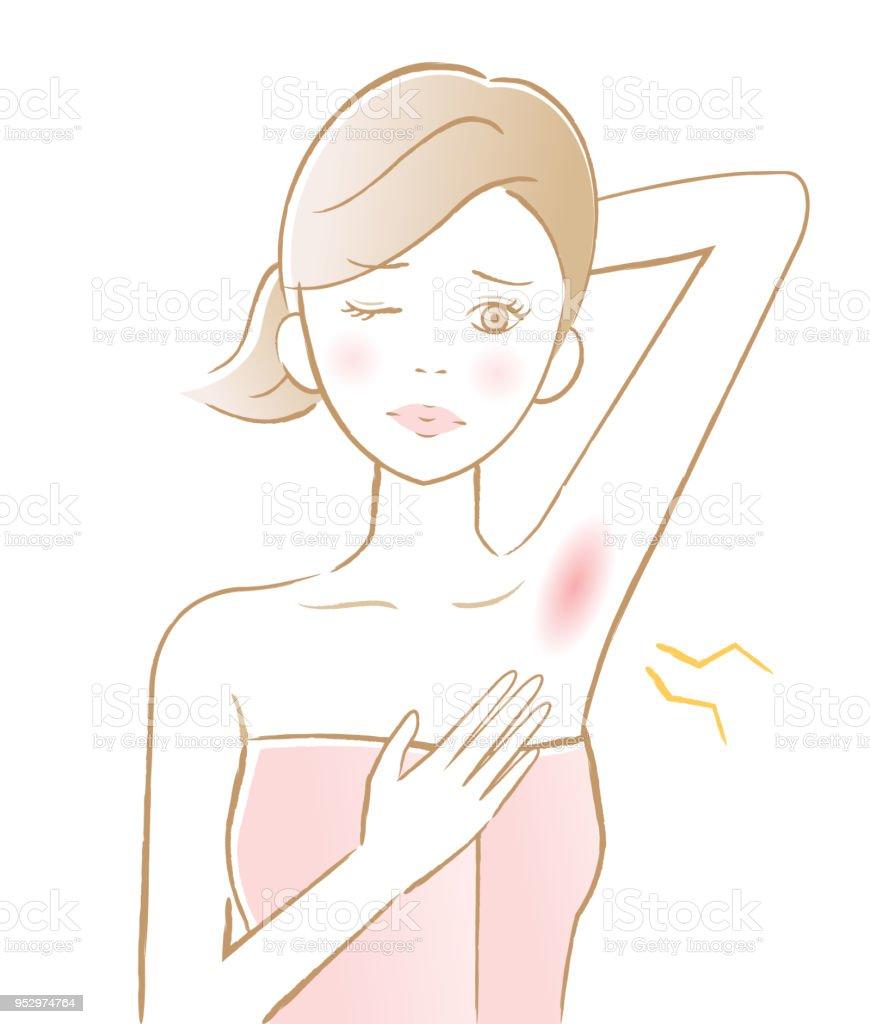 女人的腋窩脫毛。腋下皮膚有毛病。美容護膚理念向量藝術插圖