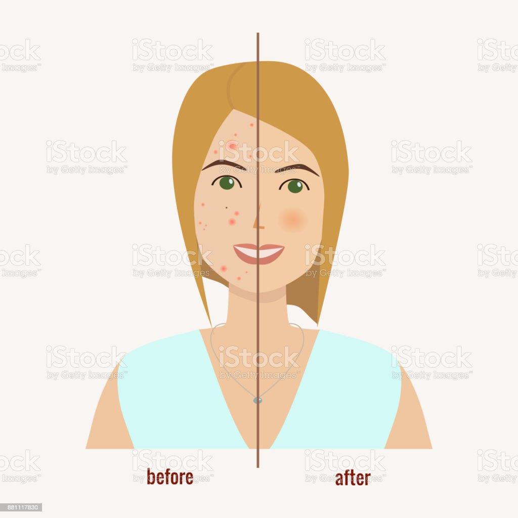 Weibliches Gesicht Mit Hautproblemen Vor Und Nach Behandlung Der ...