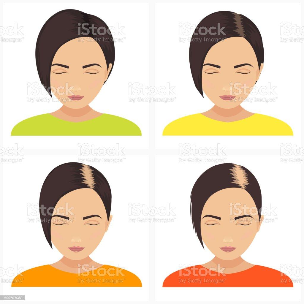 Women hair loss stages vector art illustration