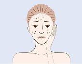 Women have problem acne skin