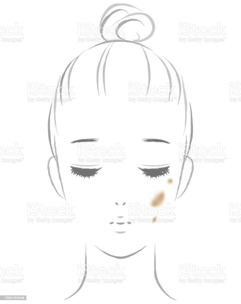 Women suffering from spots vector art illustration