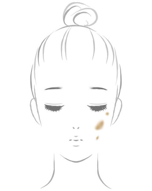 Women suffering from spots vector art illustration