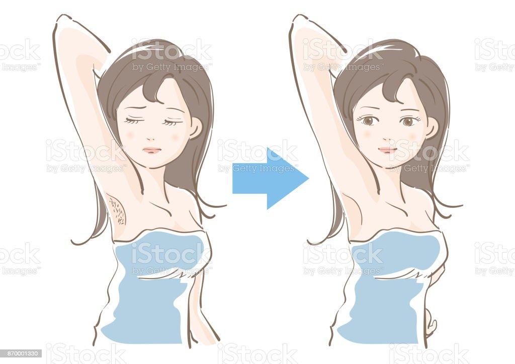 婦女美容-脫毛, 脫毛, 脫毛-前後向量藝術插圖