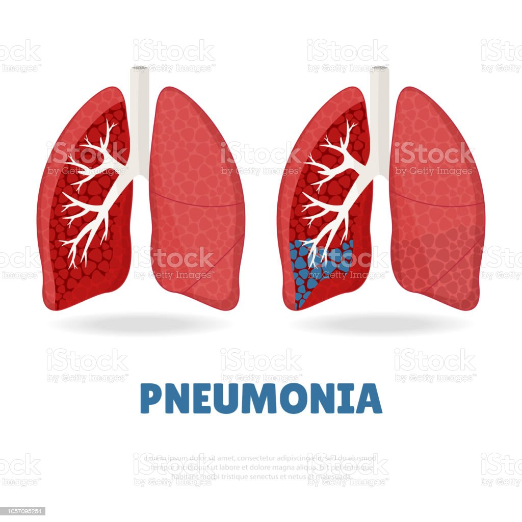 World Pneumonia Day. vector art illustration