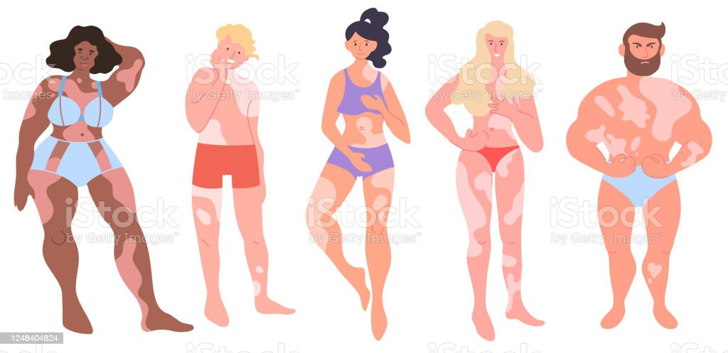 World Vitiligo Day Isolated Vector Collection Women And Men With Pigments Spots Full Body Portraits Set Young People Of Different Races With Vitiligo Disease Diversity Young Adults In Underwear Stock Illustration