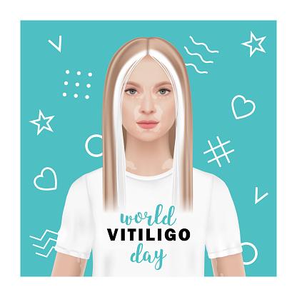 World vitiligo day. Vector illustration of a woman with vitiligo