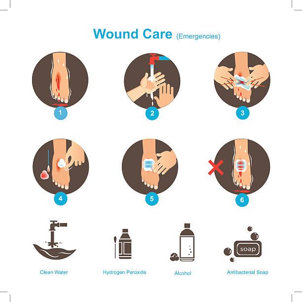 ilustrações de stock, clip art, desenhos animados e ícones de ferida cuidados de - feet hand