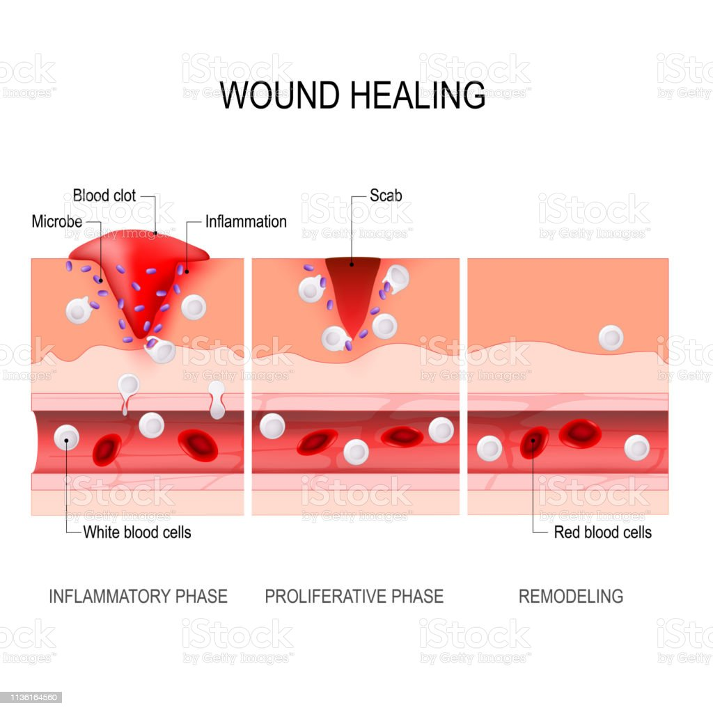wound healing process. Tissue injury and inflammation wound healing process. Hemostasis, Inflammatory, Proliferative, Maturation and remodeling. Tissue injury and inflammation. Immune system. vector diagram for medical, educational and scientific use. Aging Process stock vector