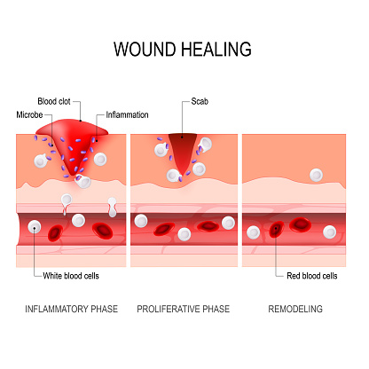 Wound Healing Process Tissue Injury And Inflammation Stock Illustration - Download Image Now