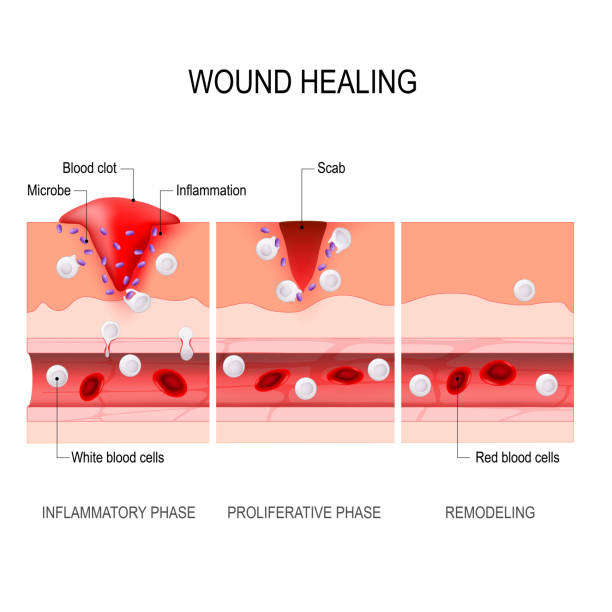 wound healing process. Tissue injury and inflammation wound healing process. Hemostasis, Inflammatory, Proliferative, Maturation and remodeling. Tissue injury and inflammation. Immune system. vector diagram for medical, educational and scientific use. inflammation stock illustrations
