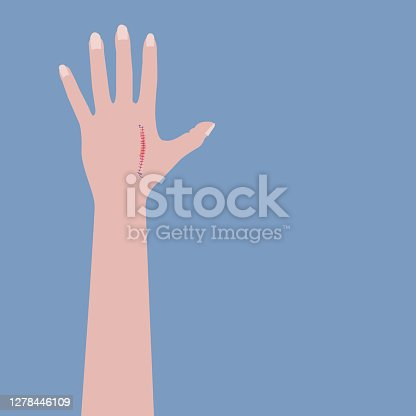 Heal a cut in the skin by sewing the wound directly. Medicine. Have a cut in a hand.