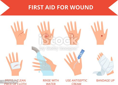 Wound skin treatment. First emergency help for human hand trauma injuries dressing bandage bleeding rescue vector set. Injury trauma, injured skin, accident body hurt illustration