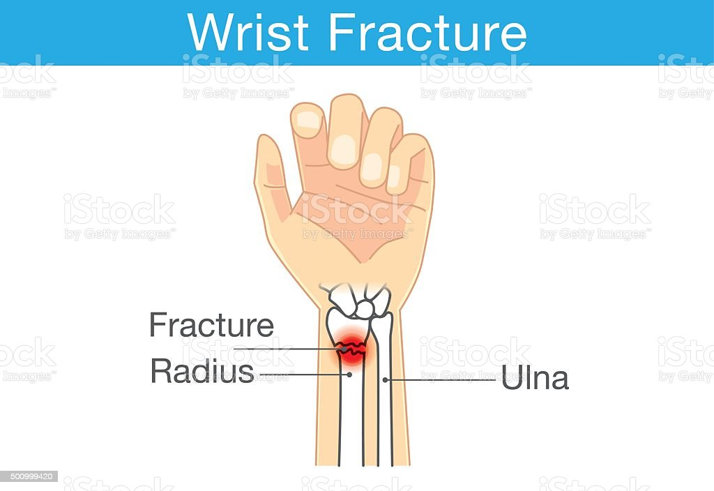 Wrist fracture vector art illustration