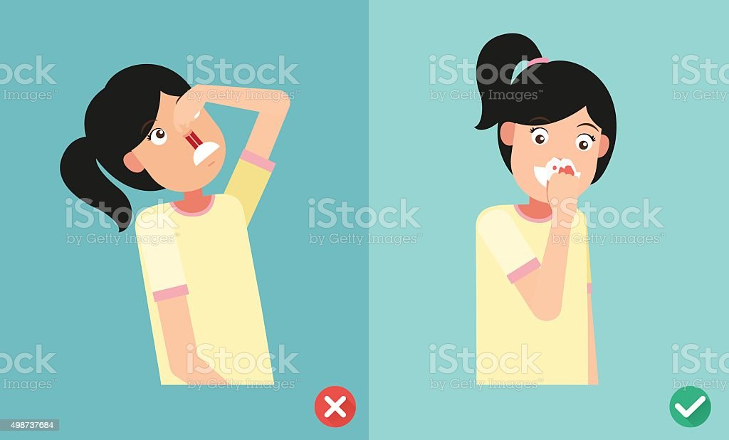 wrong and right for first aid for nasal bleeding - Royalty-free 2015 stock vector