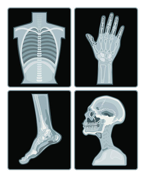 x-ray films collection a set of x-ray films on different part of body. x ray image stock illustrations