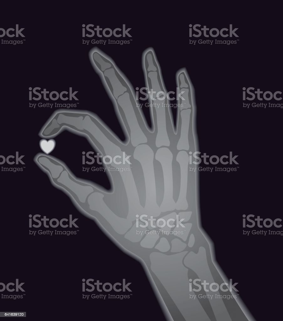 Xray Image Human Hand Holding Heart Shape Stock Vector Art & More ...