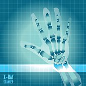 X-ray of human hand with scanner light - vector illustration