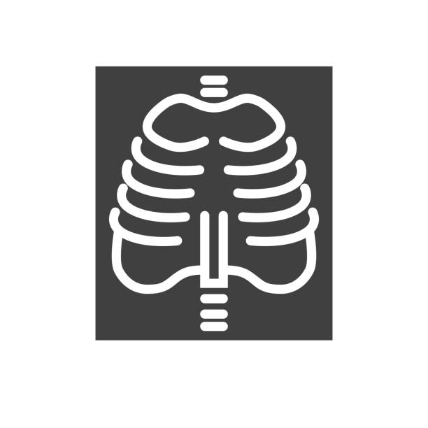 X-ray Related Vector Icon X-ray Glyph Related Vector Icon. Isolated on the White Background. Editable EPS file. Related Vector illustration. x ray image stock illustrations
