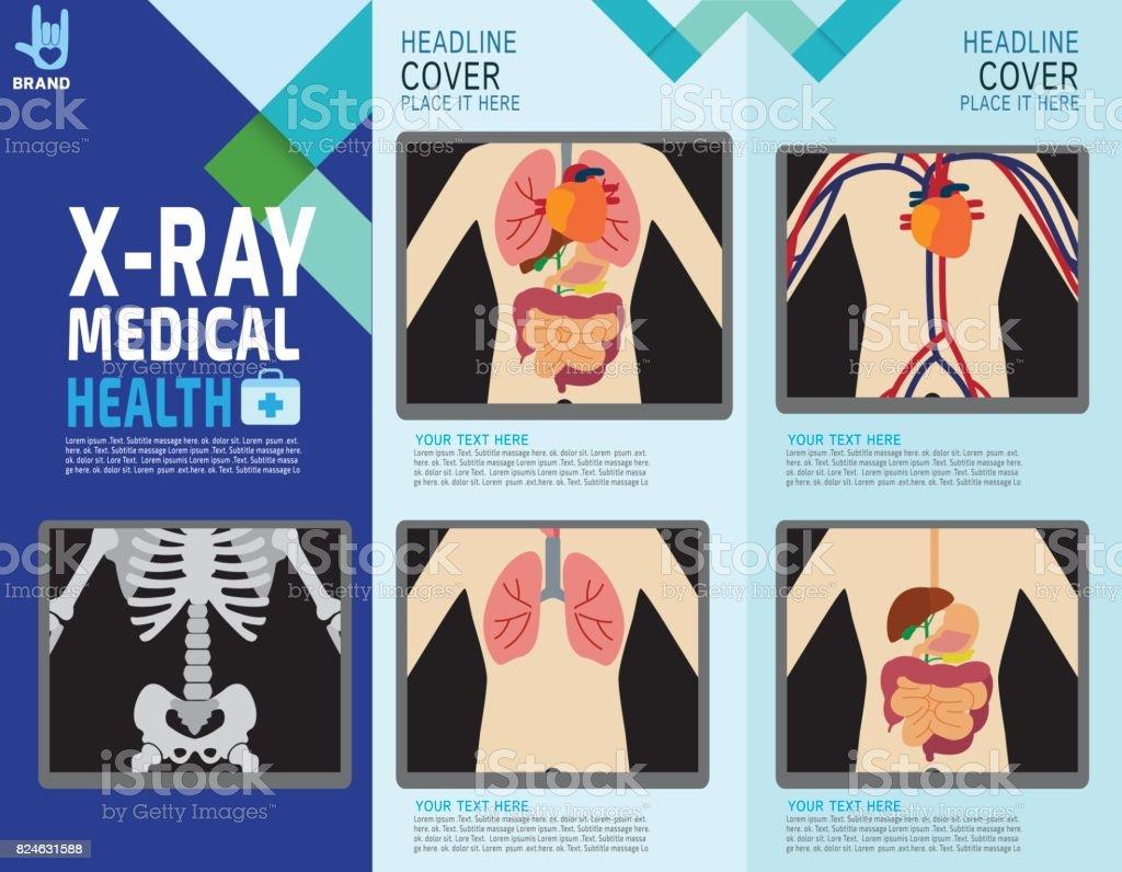 Röntgenbildschirm Zeigt Die Inneren Organe Und Skelett Systeme Des ...