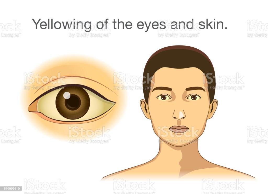 diabetes de piel amarilla