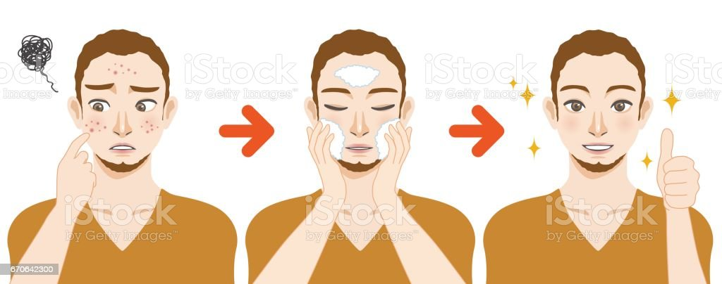 young boy acne treatment before and after, facial cleansing foam, men's skin care, cartoon illustration vector art illustration