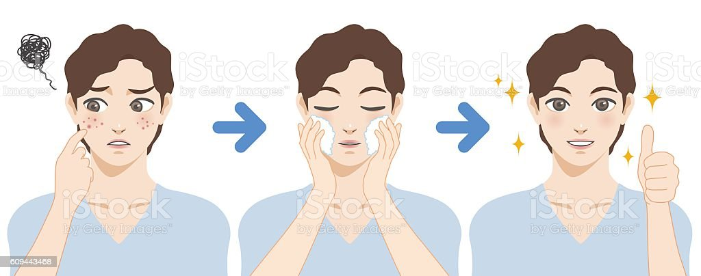 young boy acne treatment before and after vector art illustration