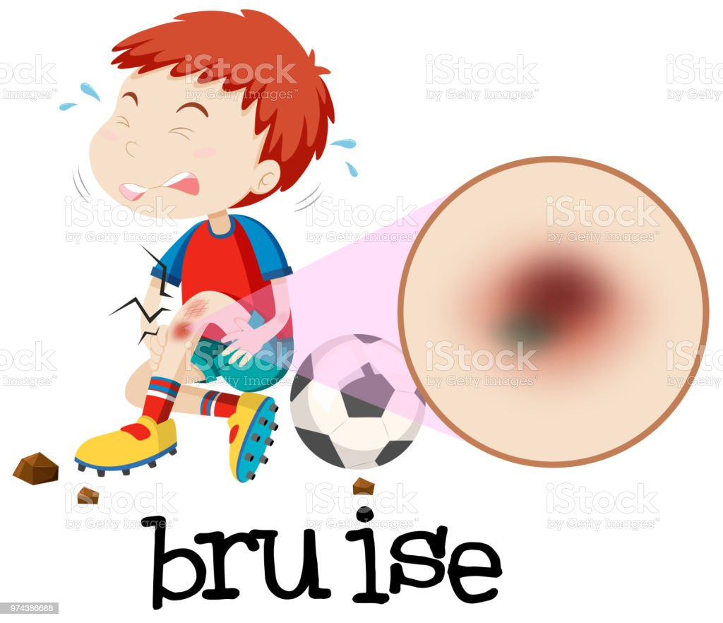 A Young Boy Habing Bruise vector art illustration