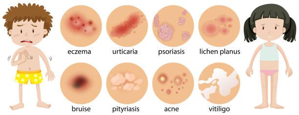 Best Dermatitis Illustrations, Royalty-Free Vector ...