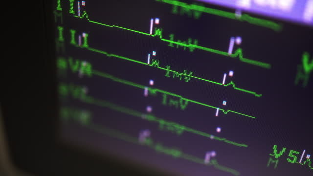 ECG ECG sign monitor inspection. pulse trace stock videos & royalty-free footage