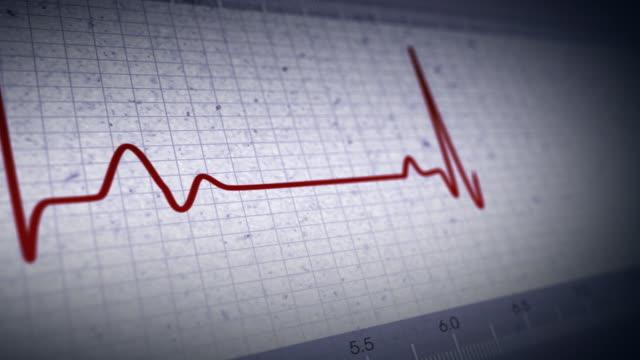 vídeos de stock e filmes b-roll de sensor ekg - ataque cardíaco