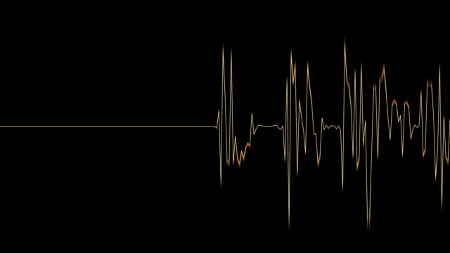 4k animation audio person spektrum in gelb - sound wave stock-videos und b-roll-filmmaterial