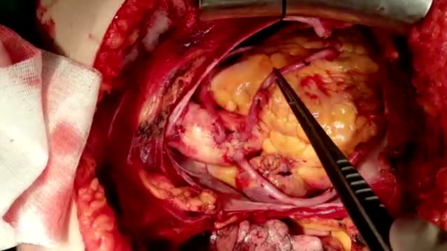 vídeos de stock, filmes e b-roll de bypass_1 coronária - marcapasso cirurgia cardíaca