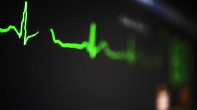 ecg - medizinisches untersuchungsgerät stock-videos und b-roll-filmmaterial