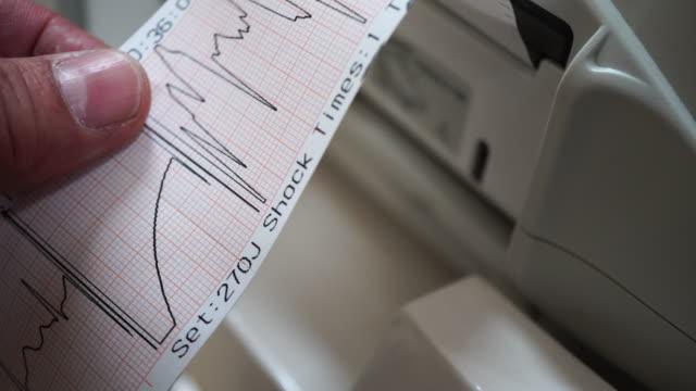 ECG Electrocardiogram  patient report. defibrillator stock videos & royalty-free footage