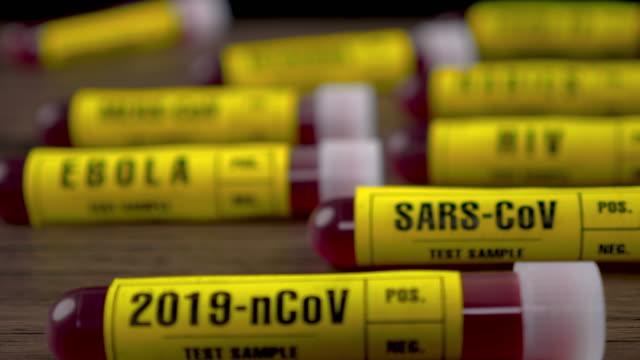 vídeos de stock, filmes e b-roll de 2019-ncov (covid-19) tubo de ensaio de amostra de sangue em mesa de madeira, dolly shot, 4k - hiv