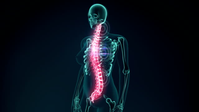 3d rendered illustration of a painful Vertebra. medical concept animation. video