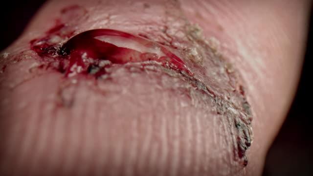 4k close-up shot of man finger with a wound - rana filmów i materiałów b-roll