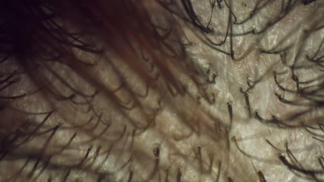 4k Extreme Close-up, Microscopic View of Human Hair and Scalp video