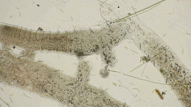 a colony of microorganisms that multiplies and consumes worm remains under a microscope video