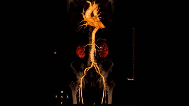 vídeos de stock e filmes b-roll de cta abdominal aorta 2d and 3d rendering image with mip mpr technique - sistema cardiovascular