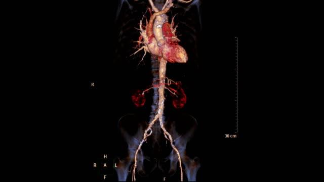 vídeos de stock e filmes b-roll de cta abdominal aorta 3d rendering image  turn around on the screen for diagnostic aortic aneurysm . - aorta