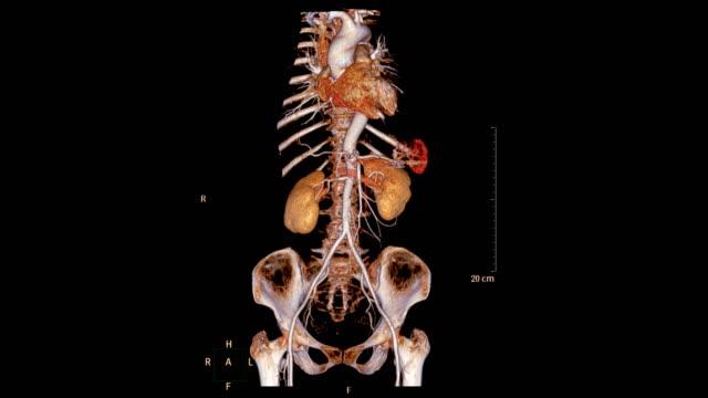 vidéos et rushes de l'image de rendu 3d de l'aorte abdominale de cta tourne autour de l'écran. - artériographie
