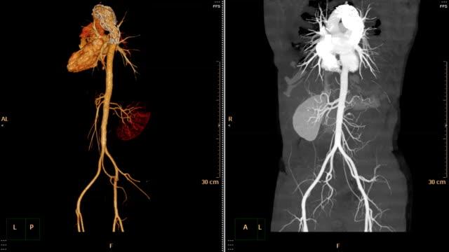 vídeos de stock e filmes b-roll de cta abdominal aorta. - aorta