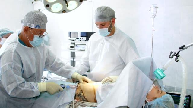 vídeos y material grabado en eventos de stock de liposucción abdominal, cirugía en el quirófano real. cirujano bombea grasa con cánula. cirugía mínimamente invasiva - parte del cuerpo humano