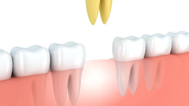 Abstract human tooth implantation. 3d render Abstract human tooth implantation. 3d render implant stock videos & royalty-free footage