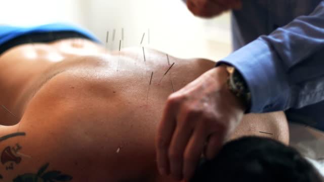 akupunktur terapi - acupuncture bildbanksvideor och videomaterial från bakom kulisserna