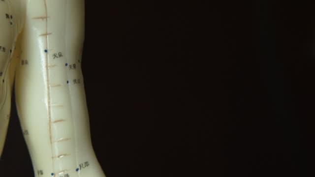 akupunktur - acupuncture bildbanksvideor och videomaterial från bakom kulisserna